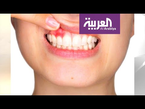 اللثة السليمة أساس لأسنان قوية لأسلوب حياة صحي
