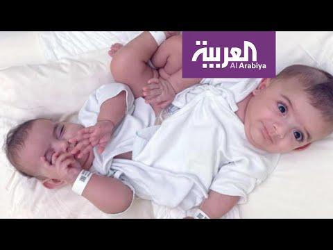 كيف أصبح التوأم السيامي الليبي بعد 20 يوما من عملية الفصل