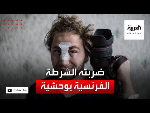 مصور سوري يروي ما تعرض له من عنف الشرطة في فرنسا